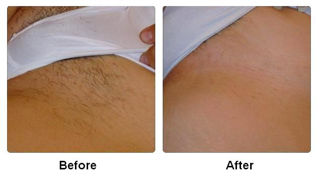 IPL Hair Removal – Tweezers Beauty